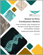 Global In-Vitro Fertilization Market: Focus on Products, Types, Procedures, and End Users, Country Data (16 Countries), and Competitive Landscape - Analysis and Forecast, 2020-2030