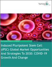 Induced Pluripotent Stem Cell (iPSC) Global Market Opportunities And Strategies To 2030: COVID-19 Growth And Change