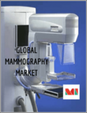 Mammography Market - Growth, Trends, COVID-19 Impact, and Forecasts (2021 - 2026)