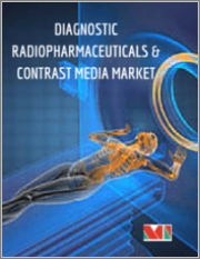 Global Diagnostic Radiopharmaceuticals & Contrast Media Market - Radiopharmaceuticals Segmented by Type of Imaging, Application, Contrast Media Segmented by Application, Procedure, indication, Geography - Growth, Trends, and Forecast (2018 - 2023)