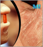Psoriasis Drugs Market - Growth, Trends , COVID-19 Impact , and Forecasts (2021 - 2026)