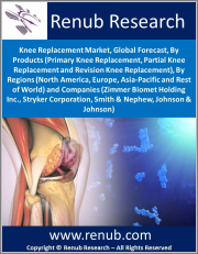 Knee Replacement Market, Global Forecast, By Products (Primary Knee Replacement, Partial Knee Replacement & Revision Knee Replacement), Regions (North America, Europe, Asia-Pacific & Rest of World) & Companies