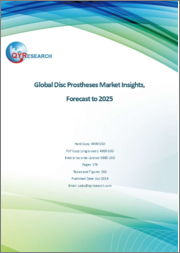 Global Disc Prostheses Market Insights, Forecast to 2025
