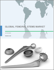 Femoral Stems Market by Fixture and Geography - Global Forecast and Analysis 2019-2023