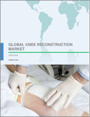 Knee Reconstruction Market by Product and Geography - Forecast and Analysis 2020-2024