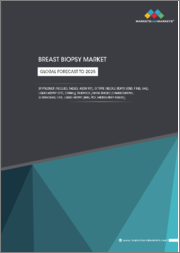 Breast Biopsy Market by Product (Needles, Tables, Assay Kit), Type (Needle Biopsy (CNB, FNAB, VAB), Liquid Biopsy (CTC, ctDNA)), Guidance (Image-Guided (Mammography, Ultrasound, MRI), Liquid Biopsy)-Global Forecasts to 2025