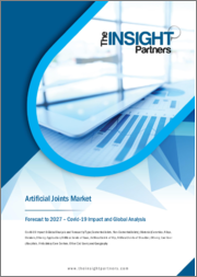Artificial Joints Market Forecast to 2027 - COVID-19 Impact and Global Analysis by Type, Material, Application, End User and Geography