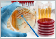 The Cell Culture Products Market, 2019-2024